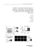 도서 이미지 - Death-associated protein kinase 1 mediates interleukin-1β production through regulating in