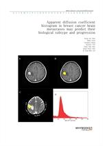 도서 이미지 - Apparent diffusion coefficient histogram in breast cancer brain metastases may predict the
