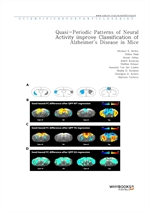 도서 이미지 - Quasi-Periodic Patterns of Neural Activity improve Classification of Alzheimer's Disease i