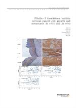 도서 이미지 - Fibulin-3 knockdown inhibits cervical cancer cell growth and metastasis in vitro and in vi