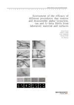 도서 이미지 - Assessment of the efficacy of different procedures that remove and disassemble alpha-synuc