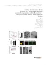 도서 이미지 - Steric interference from intrinsically disordered regions controls dynamin-related protein