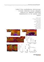 도서 이미지 - Label-free multiphoton microscopy reveals relevant tissue changes induced by alginate hydr