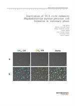 도서 이미지 - Inactivation of TCA cycle enhances Staphylococcus aureus persister cell formation in stati