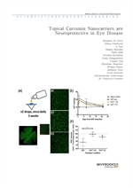 도서 이미지 - Topical Curcumin Nanocarriers are Neuroprotective in Eye Disease