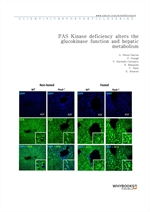 도서 이미지 - PAS Kinase deficiency alters the glucokinase function and hepatic metabolism