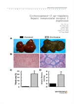 도서 이미지 - Cyclooxygenase-2 up-regulates hepatic somatostatin receptor 2 expression