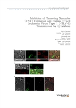 도서 이미지 - Inhibition of Tunneling Nanotube (TNT) Formation and Human T-cell Leukemia Virus Type 1 (H