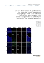 도서 이미지 - In vivo delineation of glioblastoma by targeting tumor-associated macrophages with near-in