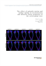 도서 이미지 - The effect of pulsatile motion and cardiac-gating on reconstruction and diffusion tensor p