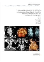 도서 이미지 - Quantified evaluation of tracheal compression in pediatric complex congenital vascular rin