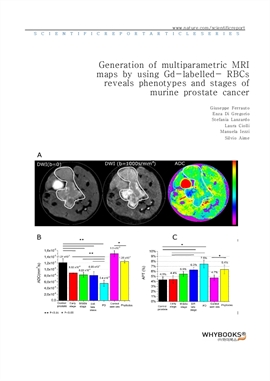 도서 이미지 - Generation of multiparametric MRI maps by using Gd-labelled- RBCs reveals phenotypes and s