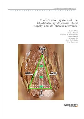 도서 이미지 - Classification system of the tibiofibular syndesmosis blood supply and its clinical releva