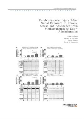 도서 이미지 - Cerebrovascular Injury After Serial Exposure to Chronic Stress and Abstinence from Methamp
