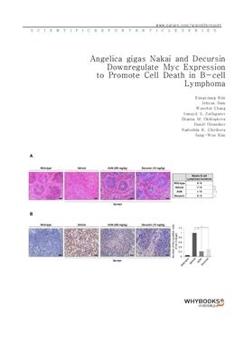 도서 이미지 - Angelica gigas Nakai and Decursin Downregulate Myc Expression to Promote Cell Death in B-c