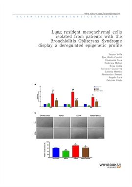 도서 이미지 - Lung resident mesenchymal cells isolated from patients with the Bronchiolitis Obliterans S