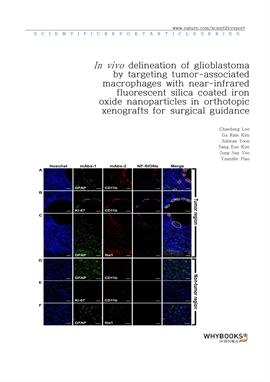 도서 이미지 - In vivo delineation of glioblastoma by targeting tumor-associated macrophages with near-in