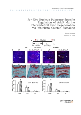 도서 이미지 - In-Vivo Nucleus Pulposus-Specific Regulation of Adult Murine Intervertebral Disc Degenerat