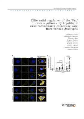 도서 이미지 - Differential regulation of the Wntβ-catenin pathway by hepatitis C virus recombinants expr
